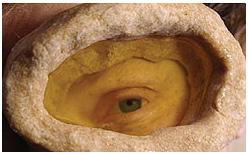 лечение глаз в домашних условиях