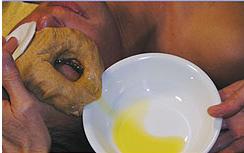 Лечение глаз на дому