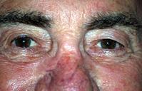 глаза старости
